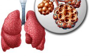 Coronavirus smoking marijuana